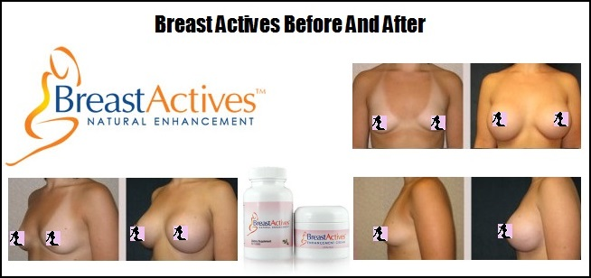 Breast Actives Results Before and After